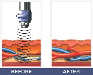 Shock Waves Penetrate the Skin to Stimulate Growth in the Blood Vessels