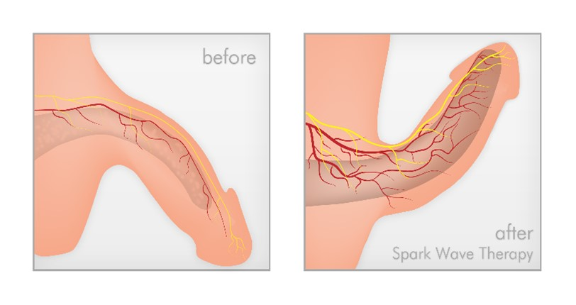 Firmer Erections Occur After Shockwave Therapy