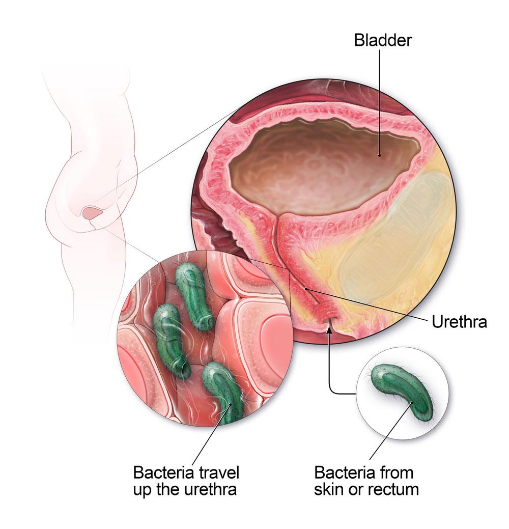 UTIs Occur When Bacteria Travel Up the Urethra