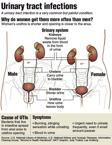 Women Are More Prone to Developing UTIs Than Men For Several Reasons