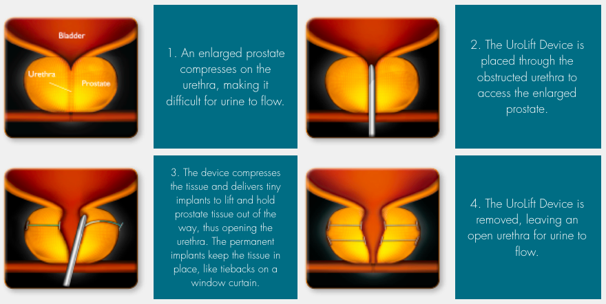 How the Urolift Procedure Expands the Urethra