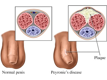 Scar tissue Builds Up in the Penis Which Makes it Inflexible in Some Areas