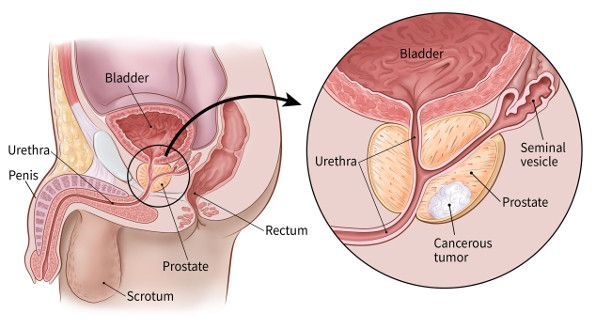 Prostate Cancer is Accelerated Cell Growth in the Prostate