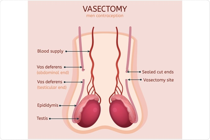 A Vasectomy Divides the Vas Deferens and Prevents Passage of Sperm